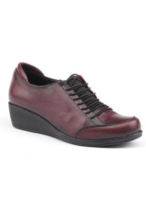 Siber 7585 %100 Deri Günlük Ortopedik Bayan Ayakkabı