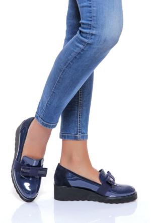 Shoes Time 16K 1116 Kadın Rugan Ayakkabı