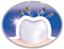 Klinik olarak kanıtlanmış WhiteSeal leke-önleyici teknoloji yeni lekelerin oluşmasını önlemeye yardımcı olur ve zorlu lekeleri bile çıkarır**