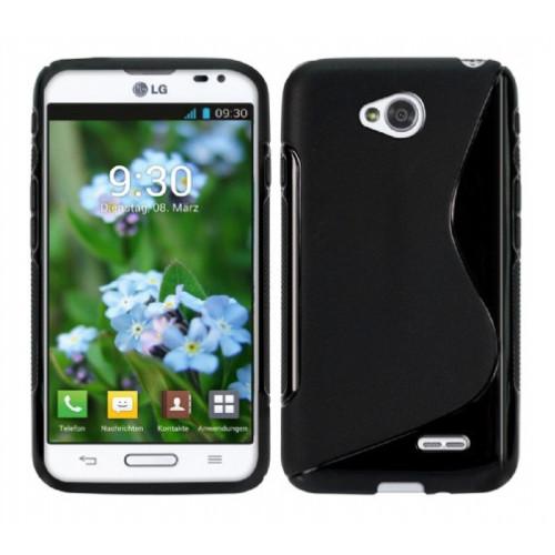 CoverZone LG L70 Kılıf Silikon S-Line Siyah