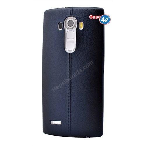 Case 4U Lg G4 Stylus Parlak Desenli Silikon Kılıf Lacivert