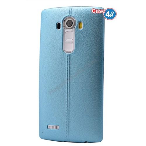Case 4U Lg G4 Stylus Parlak Desenli Silikon Kılıf Mavi