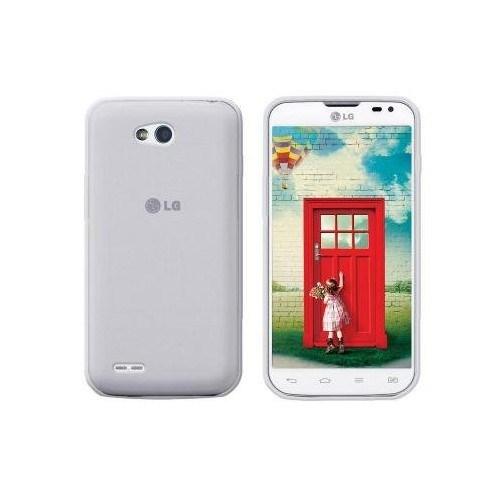 Teleplus Lg L80 Tam Korumalı Silikon Kılıf Beyaz