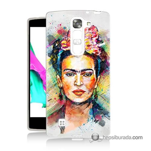 Teknomeg Lg Magna Kapak Kılıf Frida Baskılı Silikon