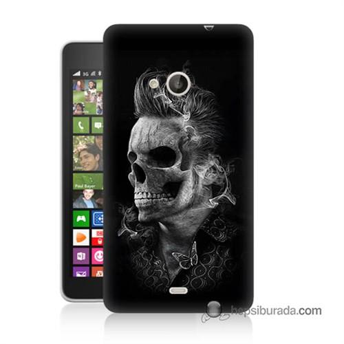 Teknomeg Nokia Lumia 535 Kapak Kılıf Elvis Presley Efsanesi Baskılı Silikon