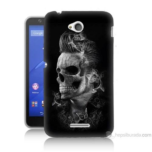 Teknomeg Sony Xperia E4G Elvis Presley Efsanesi Baskılı Silikon Kılıf
